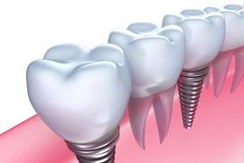 インプラント(歯科用CT完備)